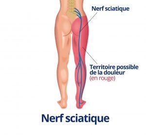 trajet nerf sciatique