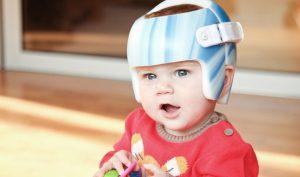 eviter casque tete plate bebe