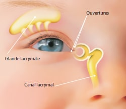 canal lacrymo-nasal obstrue