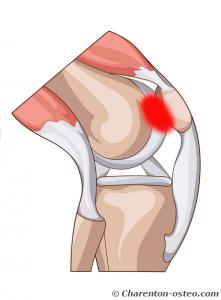 douleur derriere rotule genou