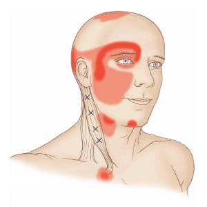 contrature scm torticolis